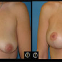 photo breast lift with implants Dr. Camille Chavez