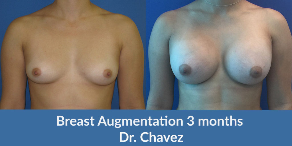 breast augmentation saline Dr. Camille Chavez