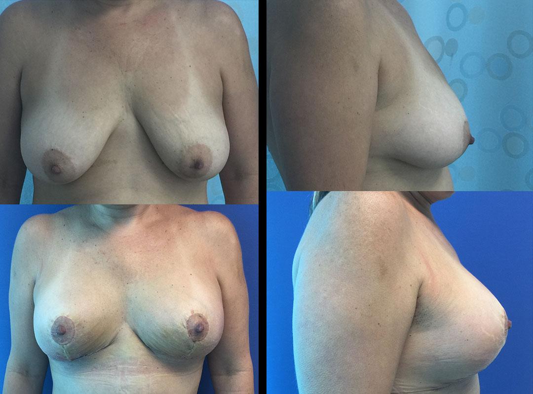 Jersey new breast augmentation