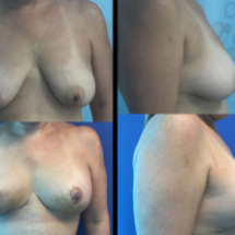 photo breast lift no implant