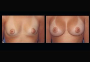 breast implant Dr. Camille Chavez