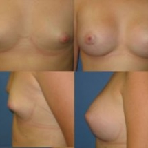 breast implant photo Dr. Camille Chavez