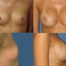 breast implants photo Dr. Camille Chavez