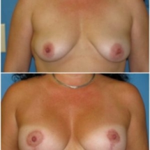 breast lift photo Dr. Chavez