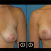 photo breast lift with saline implants Dr. Camille Chavez