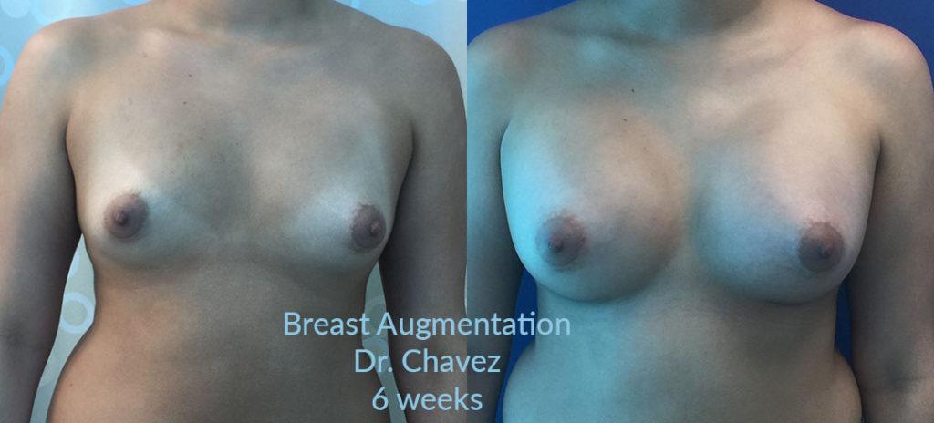 breast augmentation photo Dr. Camille Chavez