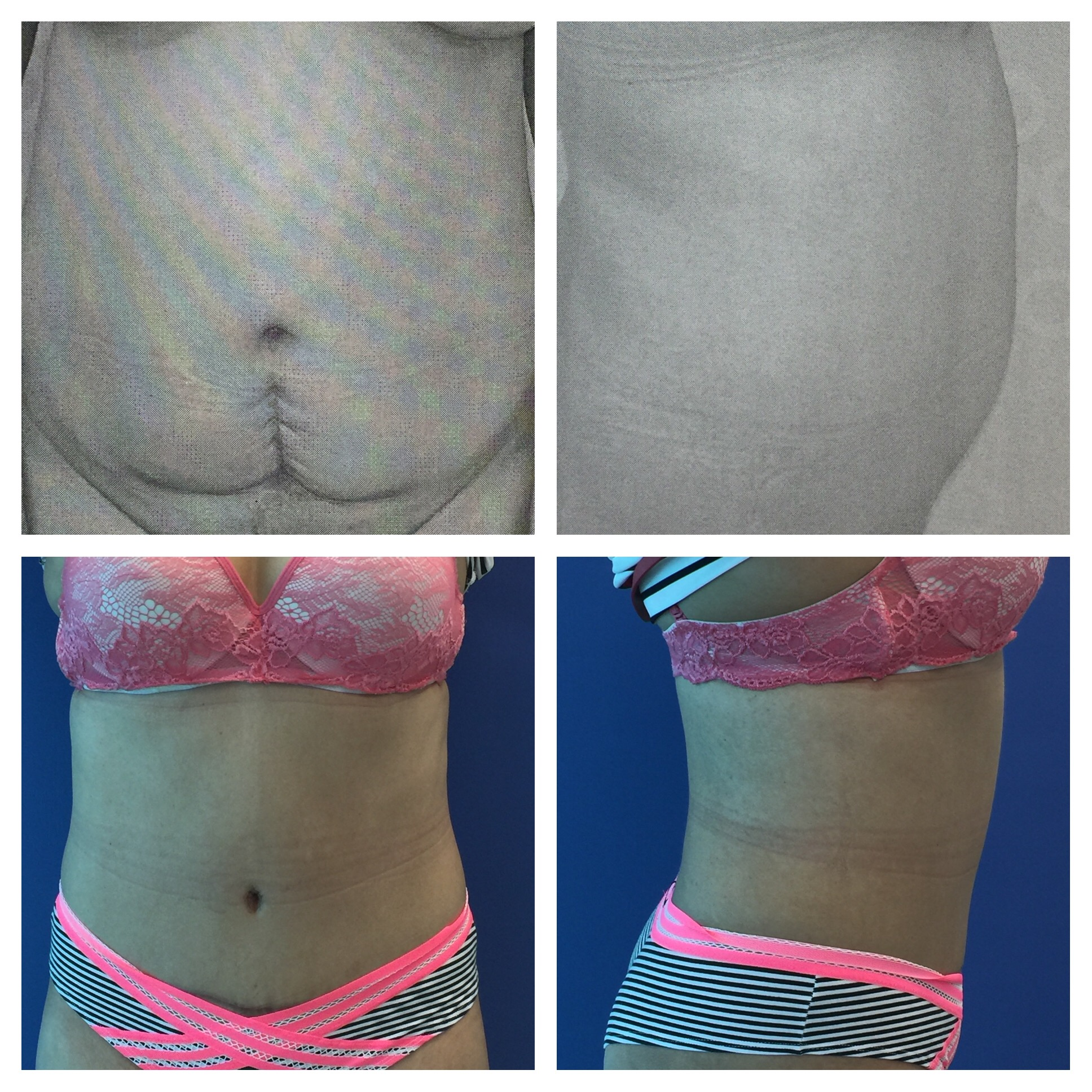 Tummy Tuck Photos Before Amp After Dr Camille Chavez Md