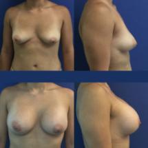breast augmentation photo