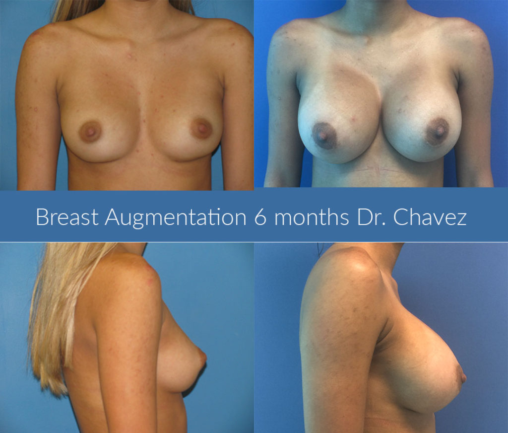breast augmentation photo before after Dr. Camille Chavez