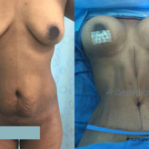 mommy makeover before and after Dr. Camille Chavez