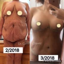 Tummy Tuck no drains and breast lift saline photo