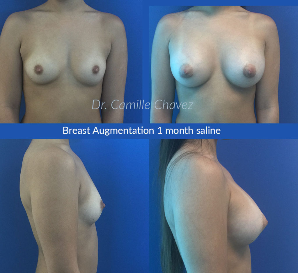 photo breast augmentation Dr. Camille Chavez