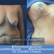 Tummy Tuck no drains and breast lift silicone photo