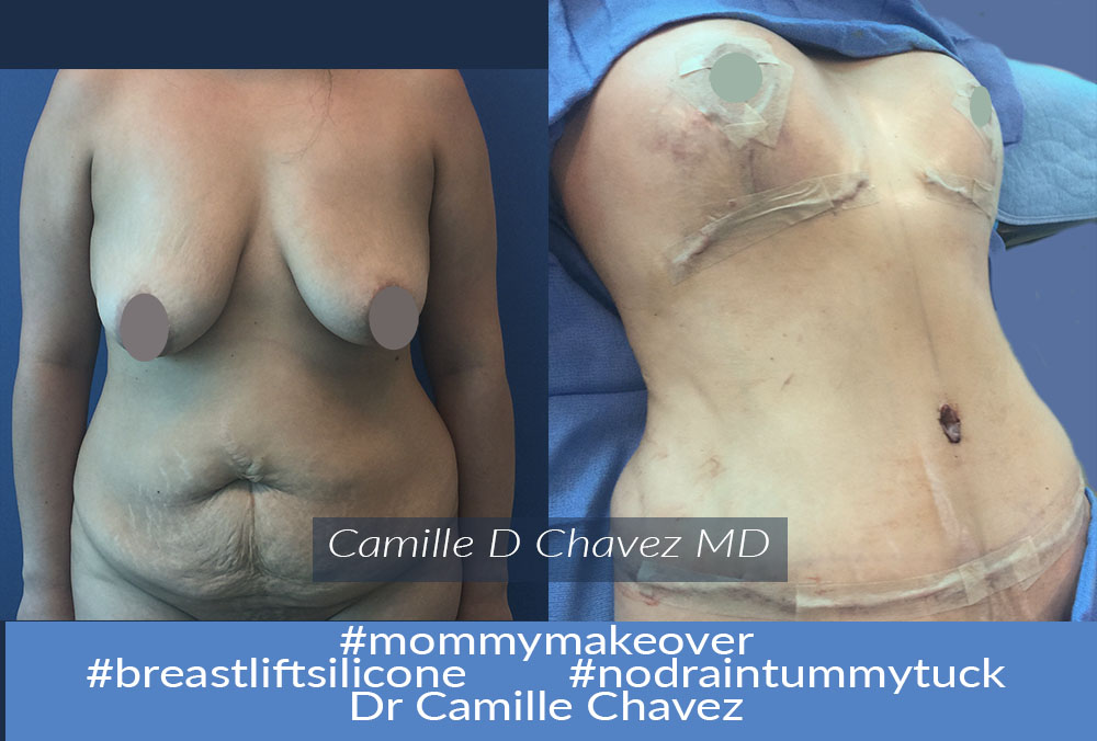 Tummy Tuck no drains and breast lift silicone photo