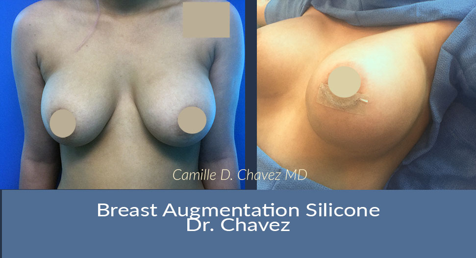 breast augmentation silicone Dr Chavez photo