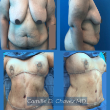 Tummy Tuck no drains and breast lift silicone