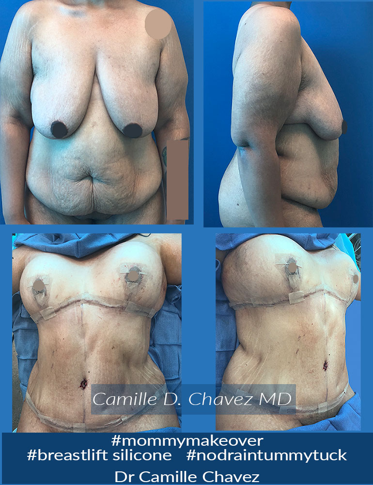 Tummy Tuck no drains and breast lift silicone